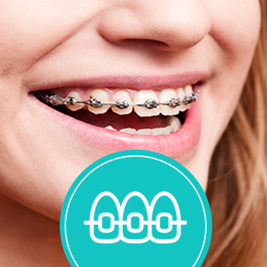 braces and aligners in panchkula